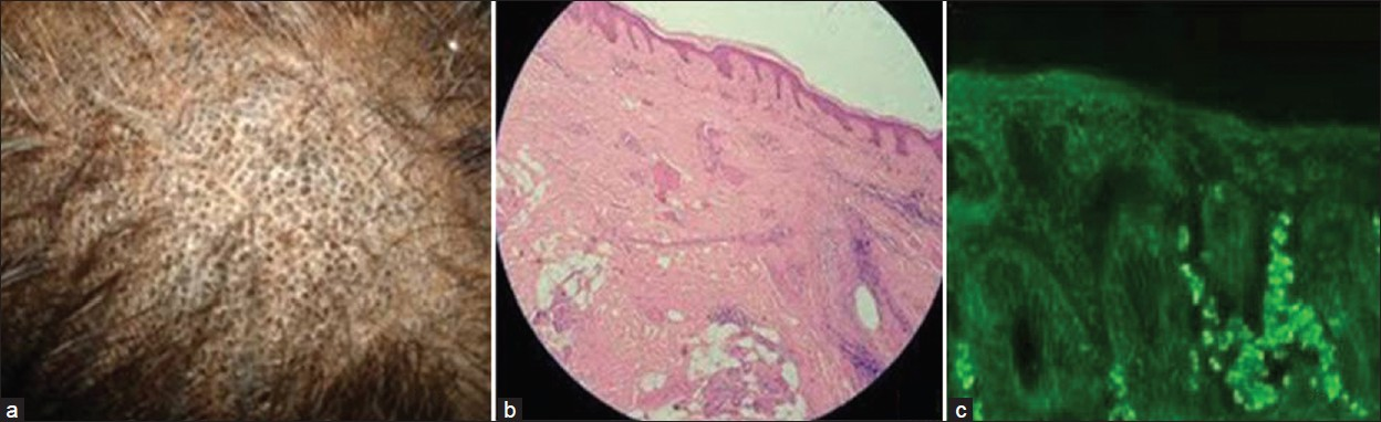 Figure 1: (a) Hyperpigmented papules, dilated follicular ostia, and loss of hair in lichen planopilaris (b) Histopathology of lichen planopilaris. (c) Immunofluorescence in lichen planopilaris