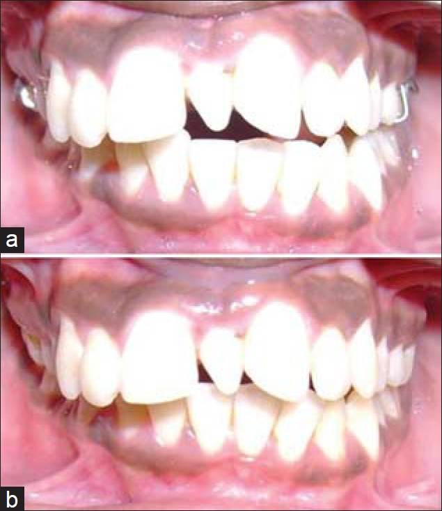 Figure 3: (a) Intraoral picture showing prosthesis after six months follow-up (b) Ideal centric occlusion achieved without prosthesis