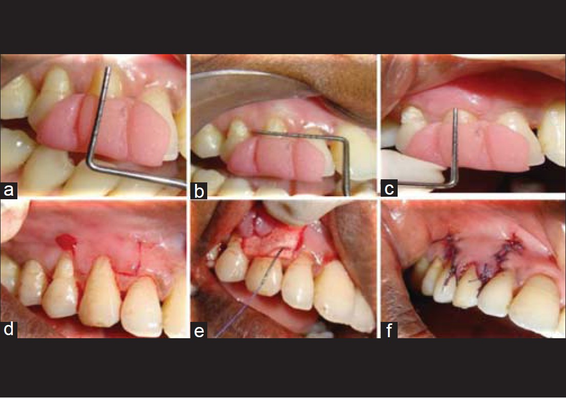 A comparative evaluation of bioresorbable type I collagen
