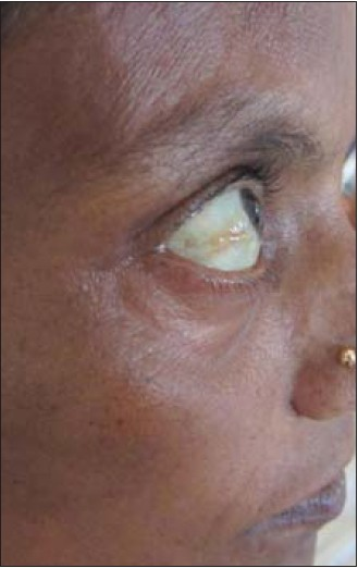 Figure 2: Exophthalmos in lateral view