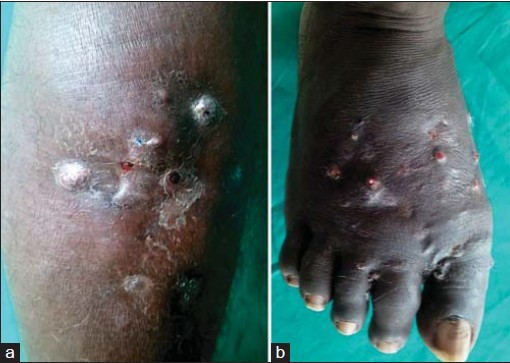 Figure 1: (a) Nodules and sinuses discharging black grains. (b) Multiple subcutaneous nodules and sinuses on dorsum of the foot