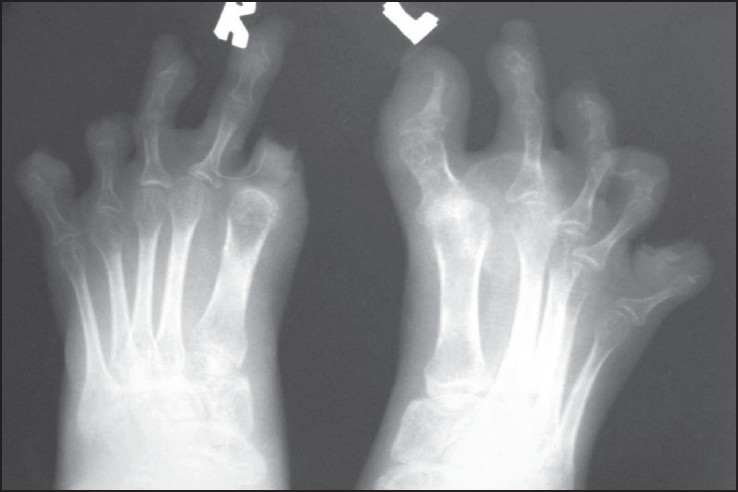 Figure 6: X-rays of right foot showing complete resorption of terminal phalanges with periarticular osteopenia