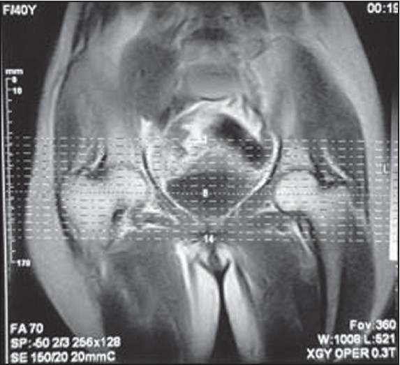 Figure 2: Magnetic resonance imaging pelvis does not show any abnormality