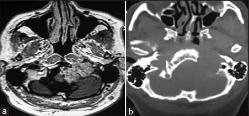 Figure 4: (a) Axial post-gadolinium MRI image showing heterogeneous enhancing mass in the region of jugular foramen on left side and extending into foramen of magnum indenting on medulla. (b) Axial CT scan bone window showing a lytic mass in the region of jugular foramen on left side with thin sclerotic rim at periphery