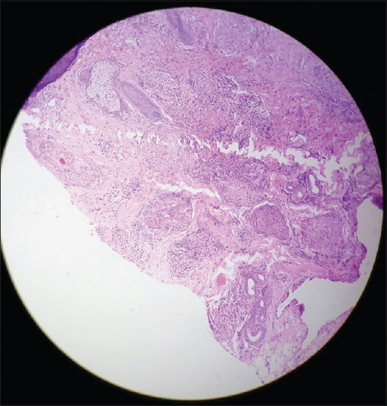 Figure 5: Normal epidermis and dermis showing adnexa and chronic inflammatory infiltrate composed of lymphocytes, plasma cells, histiocytes, and occasional multinucleated giant cells, H and E, x10