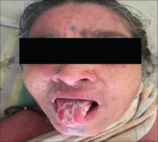 Figure 1: Acute generalized pustular psoriasis with geographic tongue