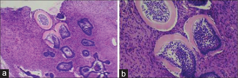 Figure 6: (a) (10×): Microscopic appearance of the lesion (H and E). Islands of odontogenic epithelium with peripheral cells resembling ameloblastic and central cells (stellate reticulum cells) of the enamel organ and loose cellular connective tissue similar to dental papilla; (b) (40×): Calcified component of dentinoid matrix adjacent to the epithelial islands