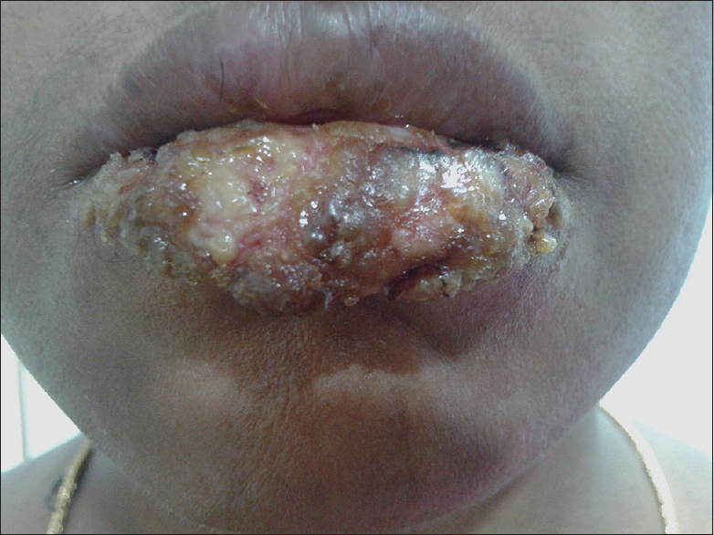 Figure 1: Marked swelling, erosion, oozing and crusting on the lower lip