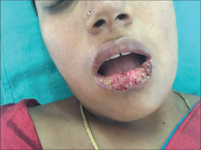 Figure 4: Ulceration, crusting with violaceous margins involving the lower lip