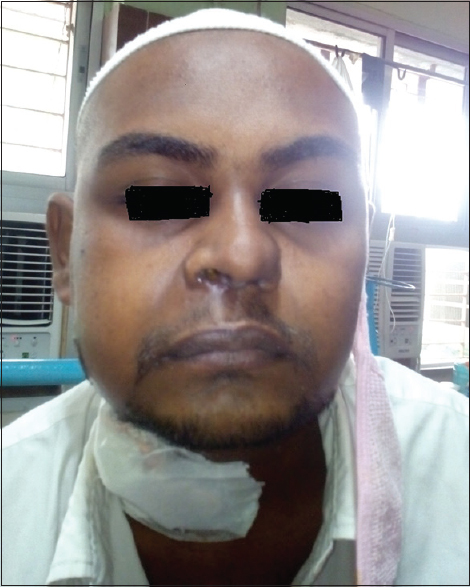 Figure 2: Swelling of the nose