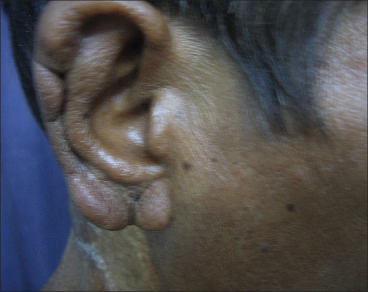 Figure 2: Infiltration of the ear lobe
