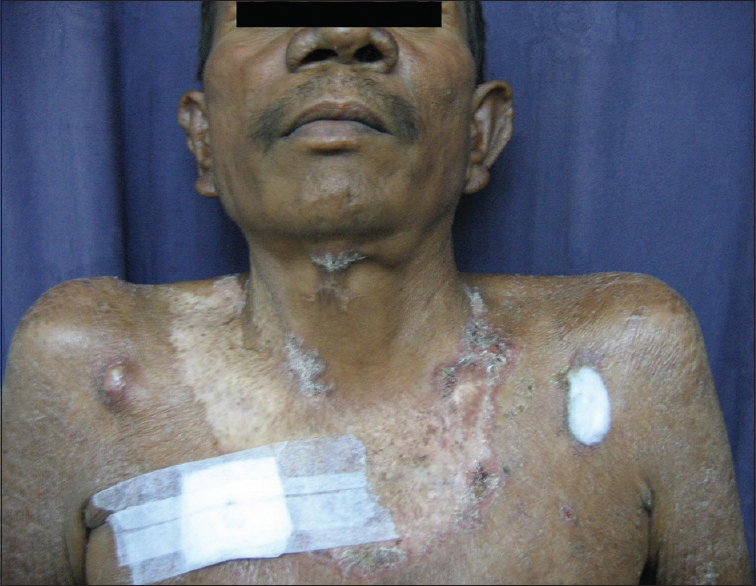 Figure 3: A single, large, atrophic, hypopigmented, well demarcated, scaly plaque with scarring at one end and infiltration towards the left side on the anterior surface of the neck and upper chest