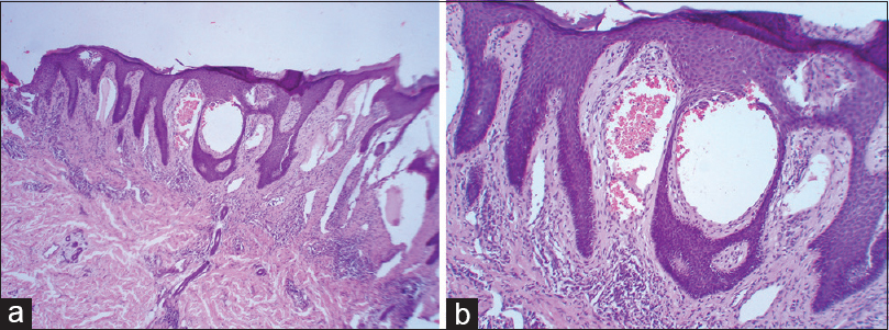 Figure 2: (a) Hyperkeratosis, moderate acanthosis with presence of numerous dilated lymphatics in superficial and papillary dermis containing many red blood cells (H and E stain 4×). (b) 10×