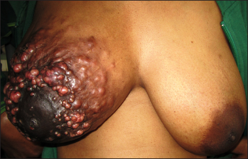 Figure 5: Multiple grouped vesicles, papules, and nodules over the right breast
