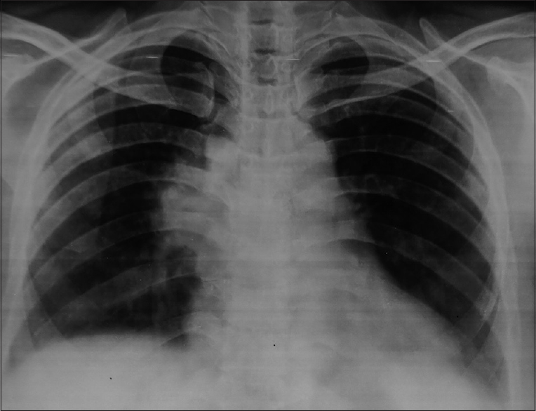 Figure 1: Chest x ray showing right hilar opacity