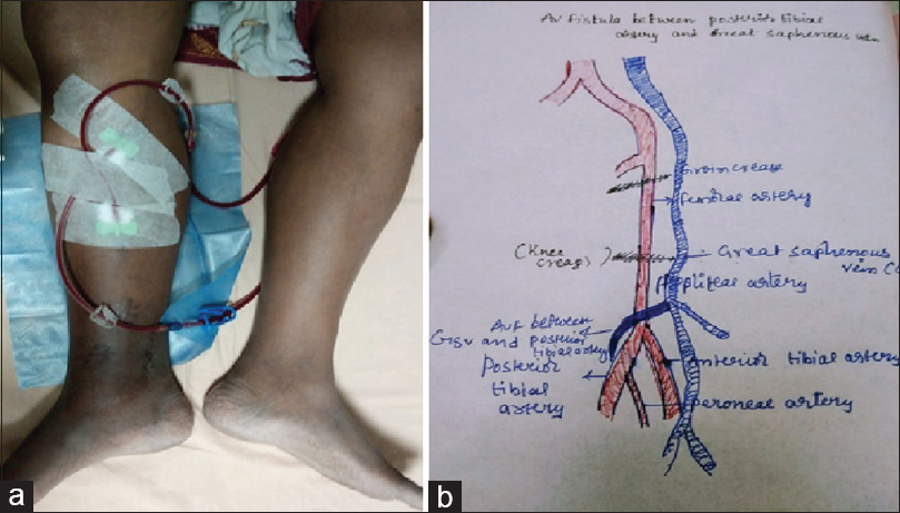 Figure 1: (a) AVF type c, as vascular access in right leg. (b) Line diagram of the AVF between posterior tibial artery and great saphenous vein