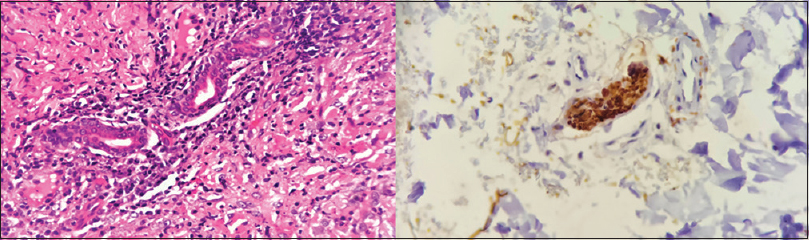 Figure 4: Microphotograph of tuberculosis verrucosa cutis shows periappendegeal acute and chronic inflammatory infiltrate (H and E, 400×); shows intact nerve bundle (IHC S100, 400×)