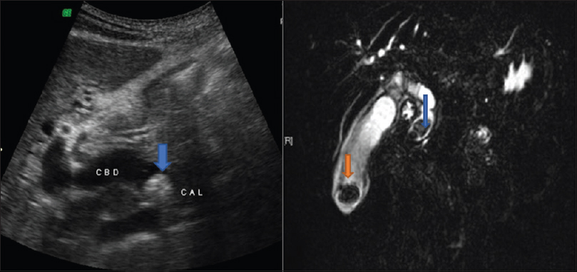 Figure 1: An 34-year-old female patientfs ultrasound image showing hyperechoic focus with acoustic shadowing in CBD suggestive of calculus (blue arrow) and MRCP image showing hypointense filling defect in GB and CBD suggestive of GB calculus (orange arrow) and CBD calculus (blue arrow)