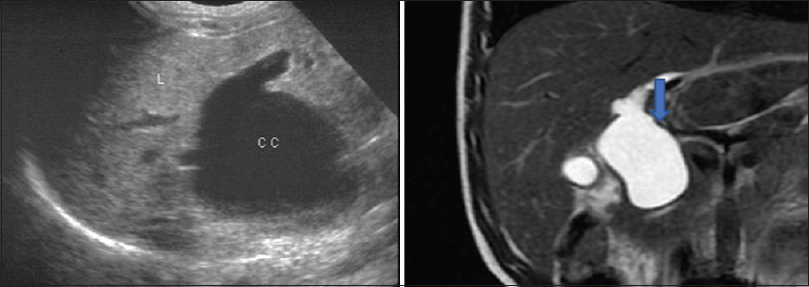 Figure 2: A 30-year-old female patientfs USG and Coronal T2 W HASTE MRCP image showing fusiform dilatation of CBD suggestive of type 1 choledochal cyst