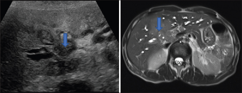 Figure 4: A 73-year-old male patientfs ultrasound image showing illdefined hypoechoic mass involving hilum (blue arrow) and Axial T 2 HASTE image showing hypointense mass lesion involving hilum suggestive of hilar cholangiocarcinoma